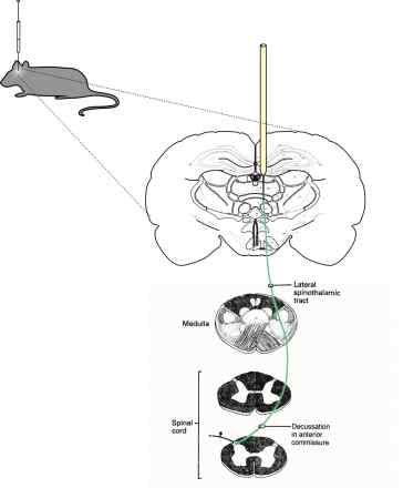 Injection in rat thalamus