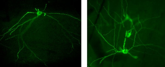 Example of the spinothalamic core of neurons expressing the GFP protein after transduction with an adenoviral vector which may be sorted by FACS (photos: Karine Bachand)